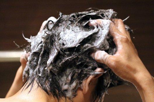 【原因1】髪の毛
